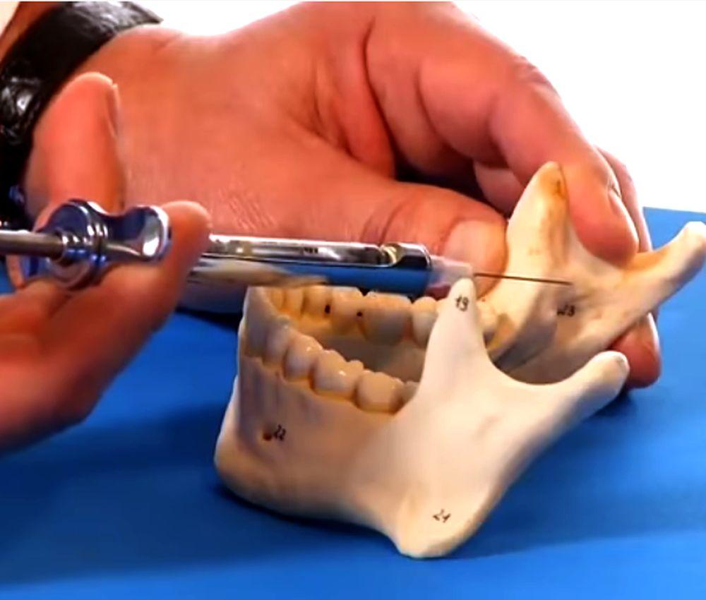 dental-anesthesia