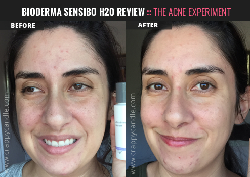 Bioderma Sensibo H2O Before After :: Crappy Candle