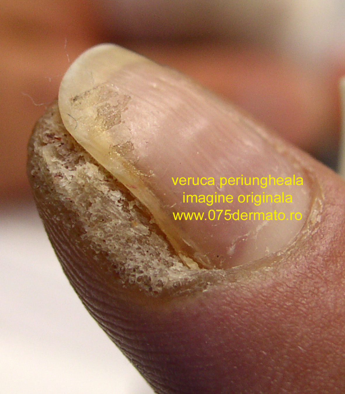 tratamentul verucii plantare cu lac de unghii)