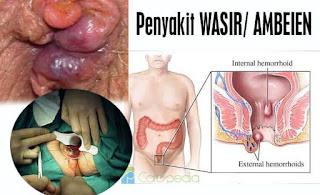 Obat Herbal Wasir Ambeien di Apotik Paling Ampuh Khasiat Jempolan