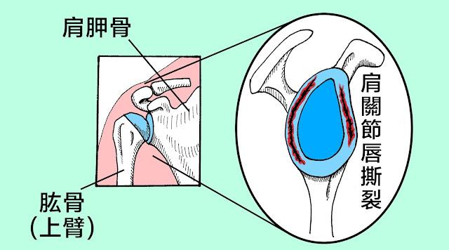 好痛痛 肩關節唇撕裂 肩膀 球窩關節
