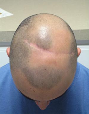 Cara Perawatan Untuk Rambut Rontok Pada Pria