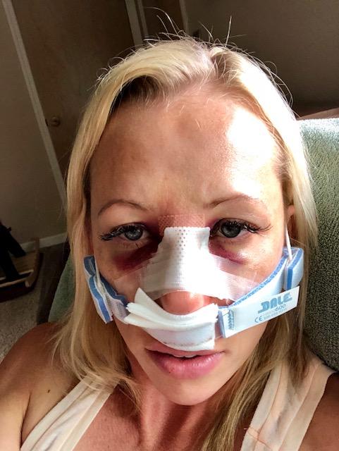 septorhinoplasty recovery photos