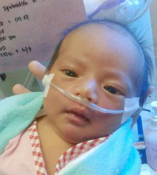 my daughter hawraa, battle with pneumothorax