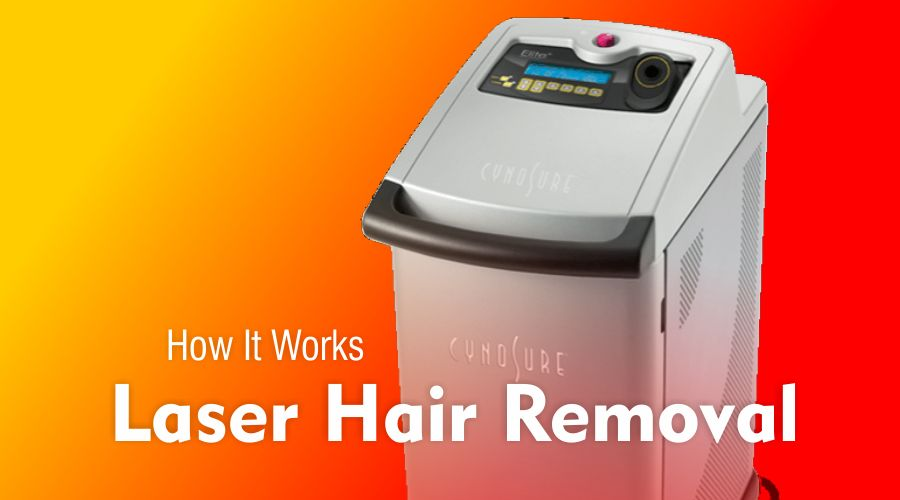 how laser hair removal treatment works beauty aesthetic doctor clinic usa