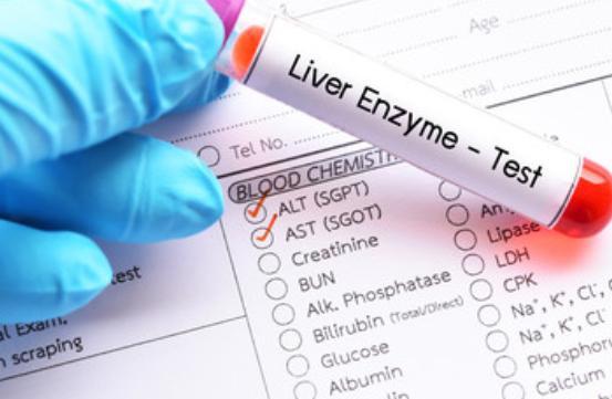 تحليل الانزيم الكبدي Alt