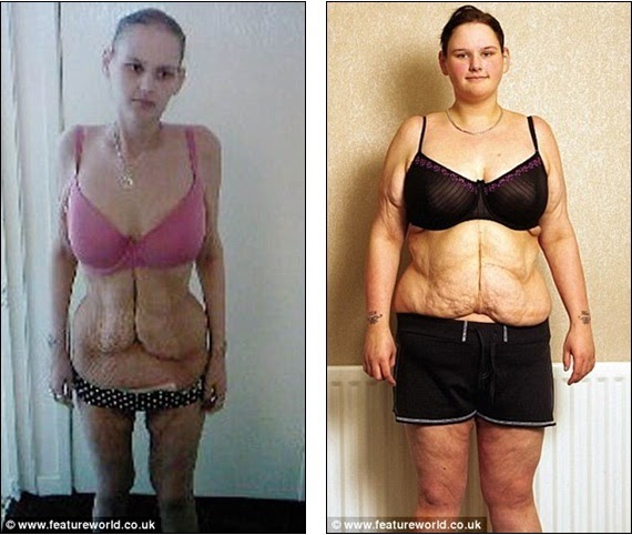Britain S Fattest Teenager Now Anorexic And Given Six Months To Live
