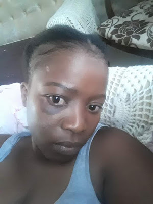 PHOTOS: Lady Accuses A Married Man Of Beating And Raping Her