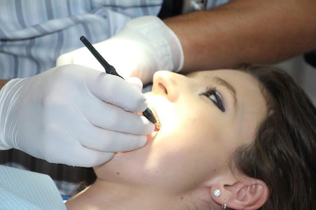 Ampuh 3 Cara Menghilangkan Bercak Putih Di Gigi