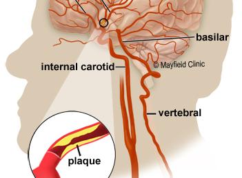 図:頭蓋内血管狭窄