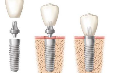 Các yếu tố khi cấy ghép implant