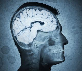Mega Cisterna Magna Symptoms, Causes, Headache, Treatment