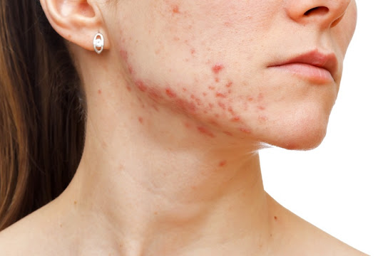 ARE YOU A WOMAN IN YOUR 30s OR 40s SUFFERING WITH ADULT ACNE?