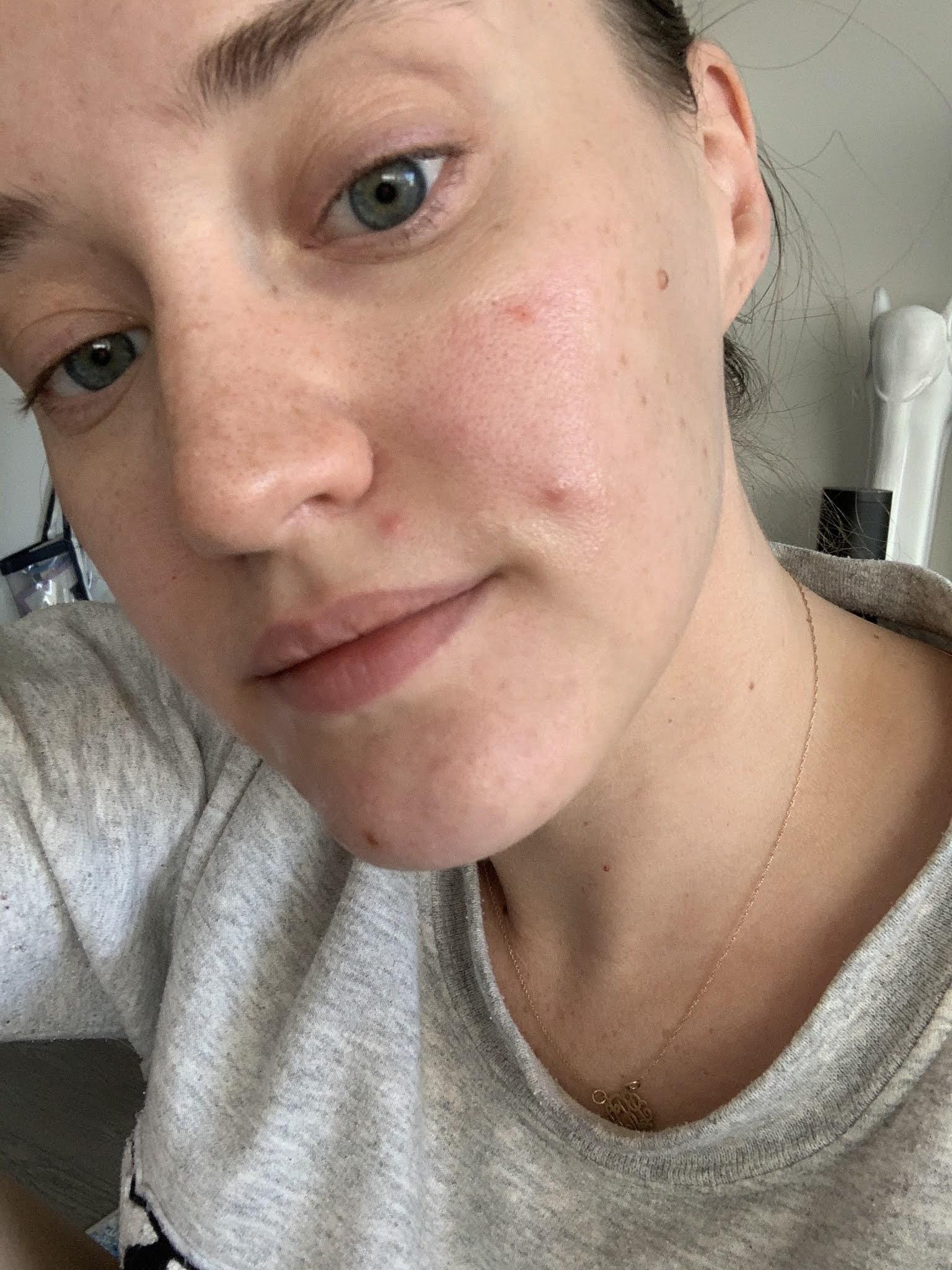 How I FINALLY Got My Acne Under Control