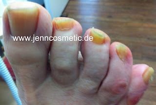 Nagelpilz-ansteckend-zehennaegel-fussnaegel-jenncosmetic