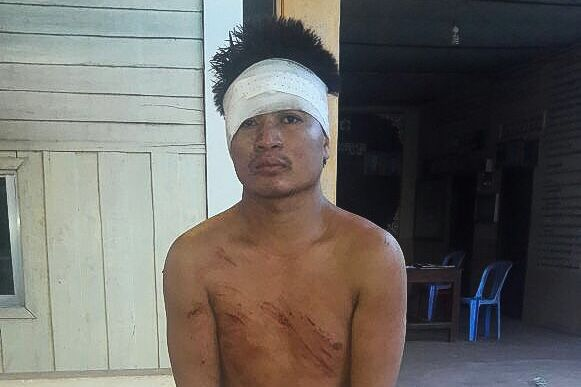 A man arrested in Preah Sihanouk yesterday, after the brutal murder of his young daughter. Photo supplied.