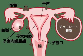 子宮内膜症の症状とセルフチェック