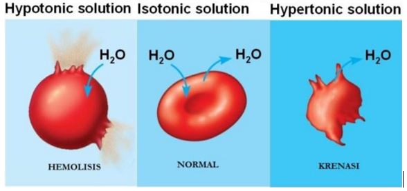 (a) larutan hipotonik (b) larutan isotonik (c) larutan hipertonik yang terjadi pada sel darah merah (Sumber: General chemistry)