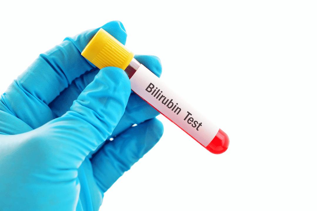 La Bilirrubina  es un pigmento biliar este que ayuda a diagnosticar el funcionamiento hígado, las vías biliares y la vesícula biliar