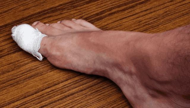 علاج التهاب الجلد حول الاظافر
