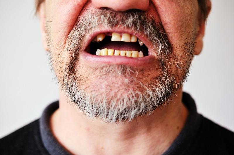 10 Kerusakan Gigi Mulut yang Dialami Perokok