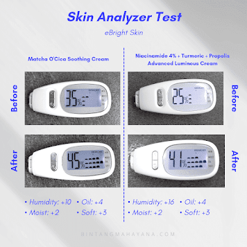 review-skin-analysis-ebright-skin-bintangmahayana-com