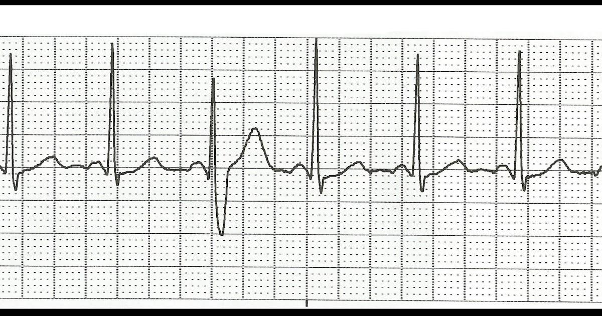 Float Nurse: Practice EKG Rhythm Strips 168