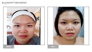 YOUTH悠美颜; 温和又有效的护肤产品; pH值平衡; 调理肌肤; 黑斑消退; 细纹不见; 脸色变亮; 皮肤保养