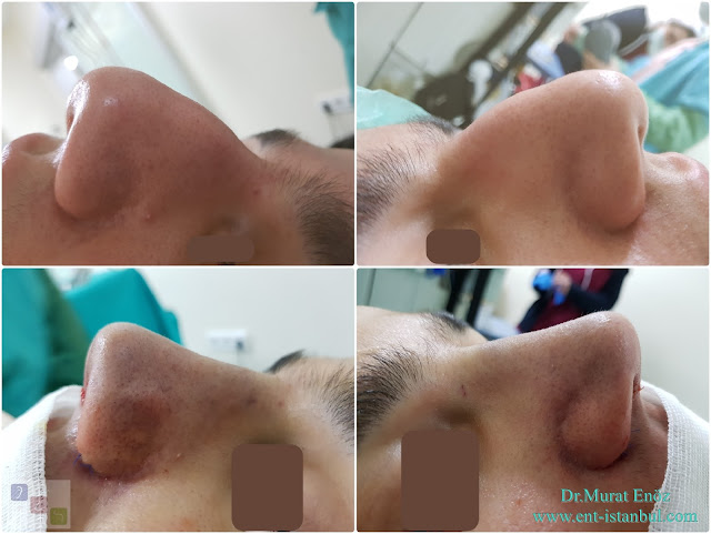Male Nose Job,Rhinoplasty in Men Istanbul, Thick Skinned Male Rhinoplasty