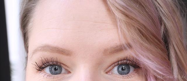 Botox in der Stirn - ja oder nein - Erfahrungsbericht - Vorher