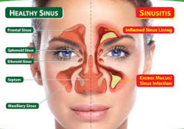 Sinusitis: Definition and Etiology