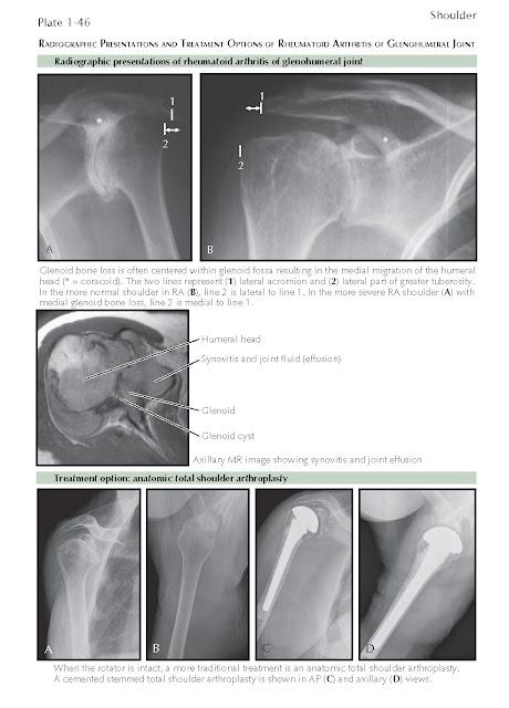 Rheumatoid Arthritis Of The Glenohumeral Joint