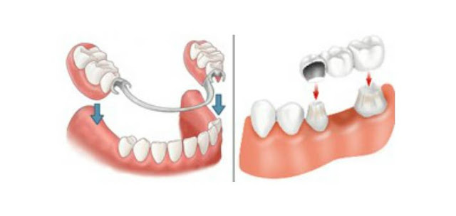 partial denture, cheapest option of dental bridge