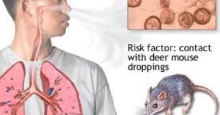 تعرف على فيروس هانتا Hantavirus و أهم أعراضه