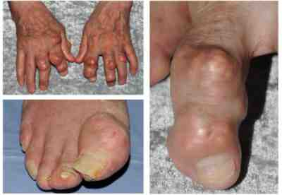 Sleep Apnea and Gout – Occurrences of Gout Now Increases to Two-fold for Sleep Apnea Patients