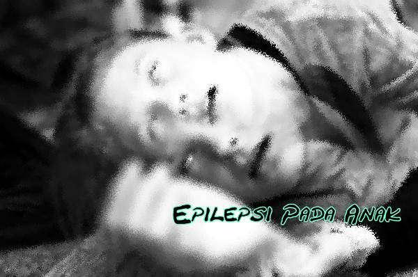 Bagaimana Pengobatan Penyakit Epilepsi Pada Anak Yang Paling Baik?