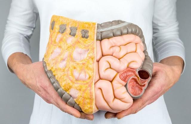 الدهون,الكوليسترول,ارتفاع نسبة الكوليسترول,ما هي أسباب الكوليسترول,نسبة الكوليسترول الطبيعية,أعراض,وصفات طبيعية,كيفية تقليل نسبة الكوليسترول,الكولسترول وعلاجه,الدكتور محمد الفايد,ما هو الكوليسترول,علامات,محمد فايد