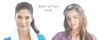 Kenali Jenis- jenis jerawat : Jerawat Matang Vs Jerawat Remaja