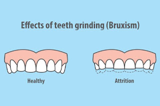 http://www.thangamsdentalclinic.org/Tooth-Grinding.php