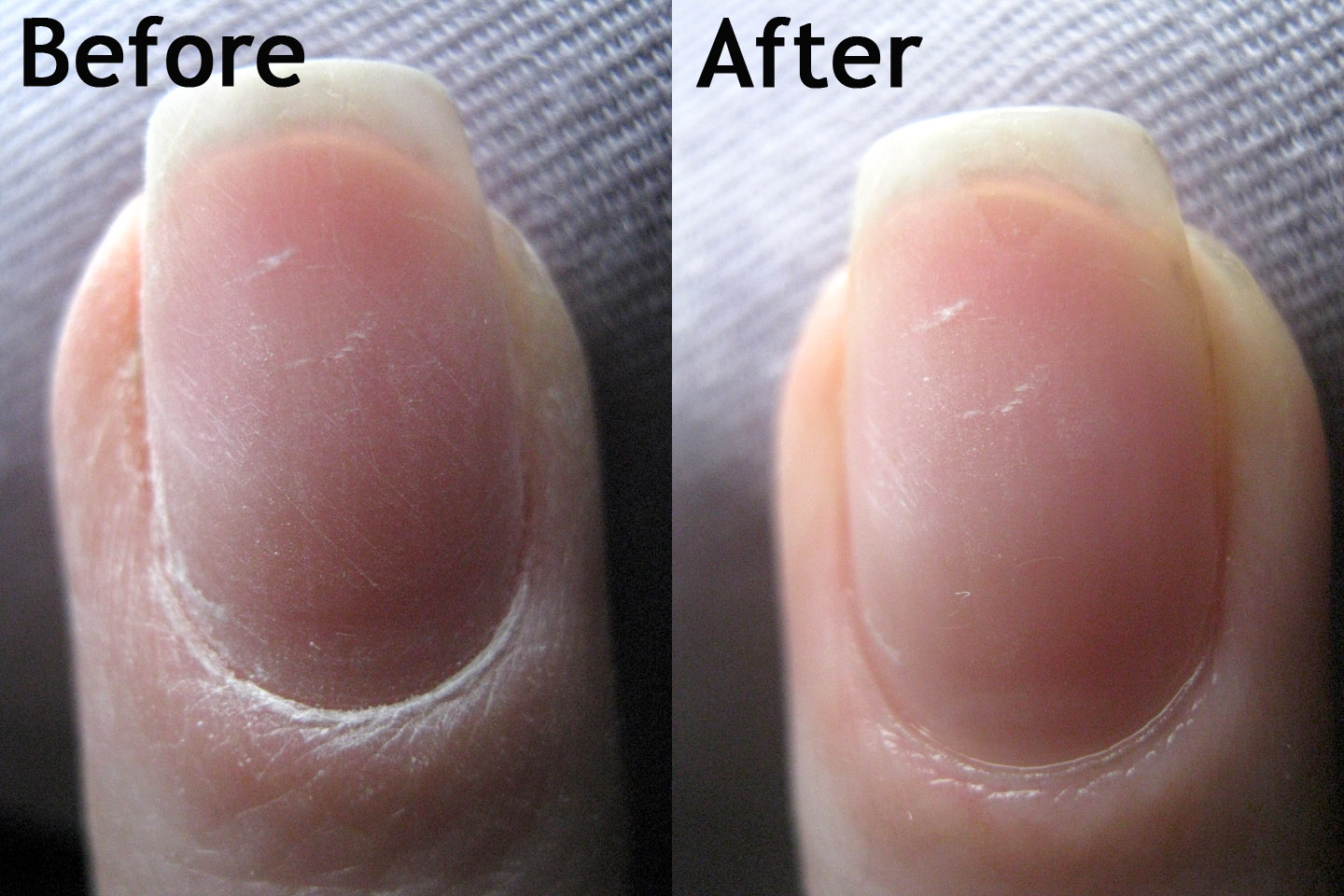 On The Left You Ll See My Nail With Acrylic Removed And Just Gently Buffed 320 Side Of Buffer Right Is After Buffing A