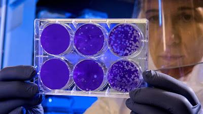 Teste de coronavírus obtém aprovação de emergência do US FDA