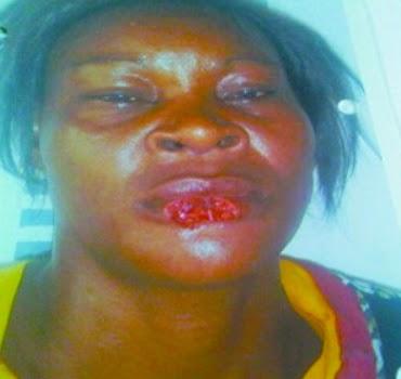 woman bites off friend's lip