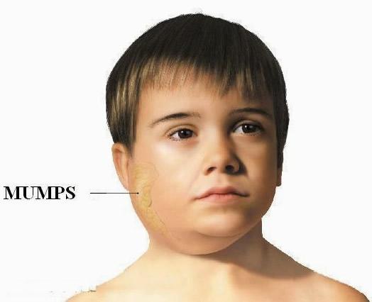 Big mumps