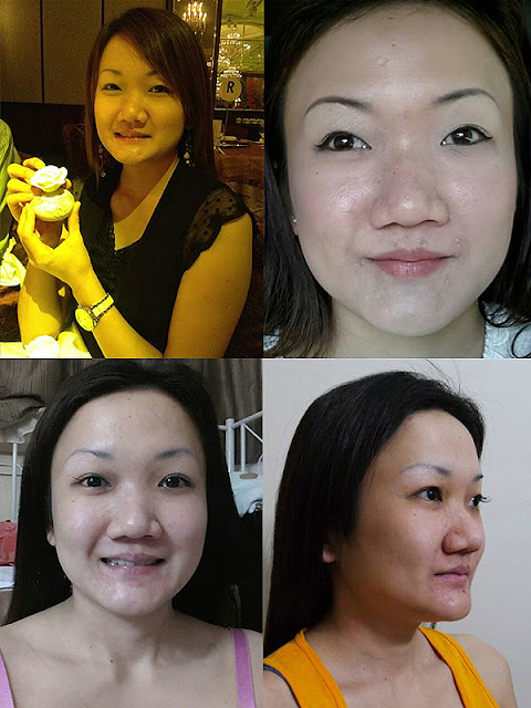 짱이뻐! - Wonderful Korean Eye Plastic Surgery Golden Ratio
