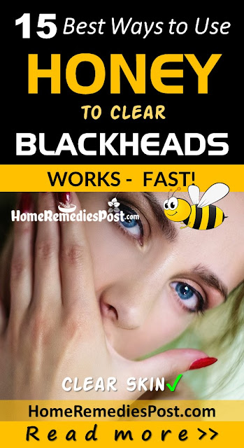 Honey For Blackheads, How To Get Rid Of Blackheads, Home Remedies For Blackheads, How To Remove Blackheads, Blackheads Treatment, How To Treat Blackheads, How to Get Rid of Blackheads Overnight, How To Get Rid Of Blackheads Fast, Blackheads Home Remedy, How To Cure Blackheads, How To Take Blackheads Out, Blackheads Remedies, Treatment For Blackheads,