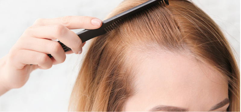 How Hair Loss Can Challenge Your Self-Esteem