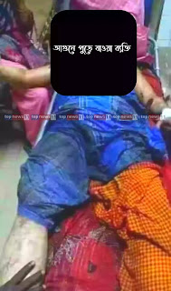 topnews11.com - আগুনে দগ্ধ ব্যক্তির ছবি
