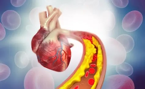 reasons for high ldl cholesterol levels