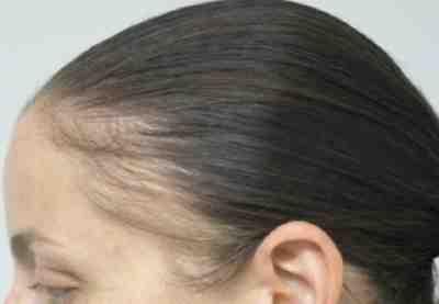 لانبات الشعر في مقدمة الراس بسرعة