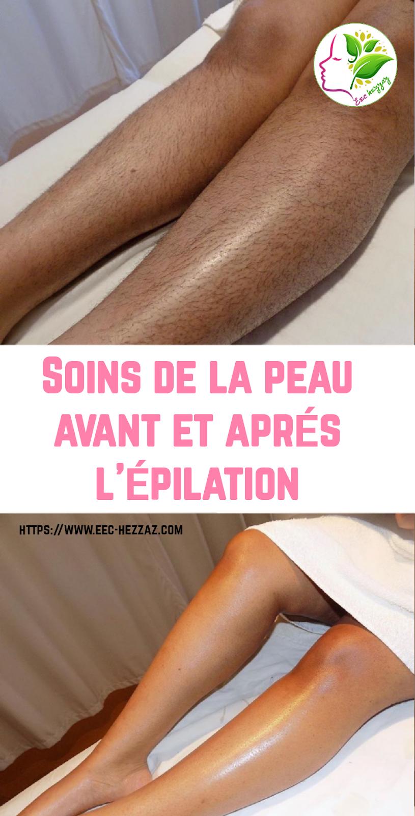 Soins de la peau avant et après l'épilation